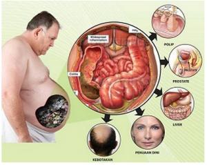 sumber penyakit perut