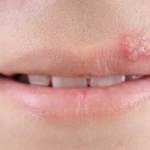 Herpes dan Cara Mengatasinya