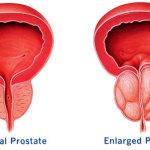 Kanker Prostat, Gejala dan Penyebabnya