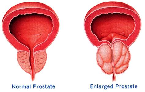 Image Obat kanker prostat herbal yang manjur
