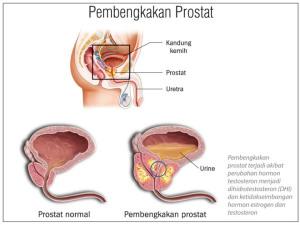 Pembengkakan Prostat
