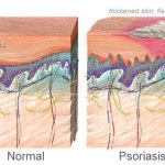 Psoriasis, Gejala dan Pengobatannya