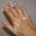 Vitiligo Dapat Diatasi dengan Produk Ramuan Herbal