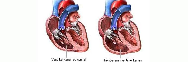 Pembengkakan Jantung